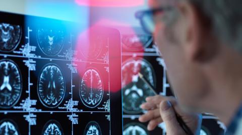 """""""Kognitiven Zerfall vorhersagen"""": US-Studie entdeckt überraschenden Risikofaktor für Demenz und kognitive Beeinträchtigungen"""