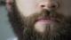 Arzt warnt: Nasenhaare auf diese Weise zu entfernen, kann tödlich enden